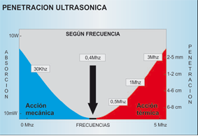 ultrasonidos 2